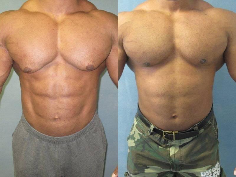Операция по удалению гинекомастии у мужчин