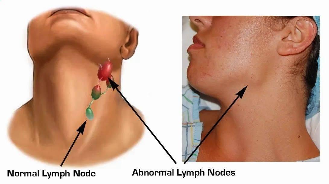 Воспаление околоушного лимфоузла с одной стороны симптомы