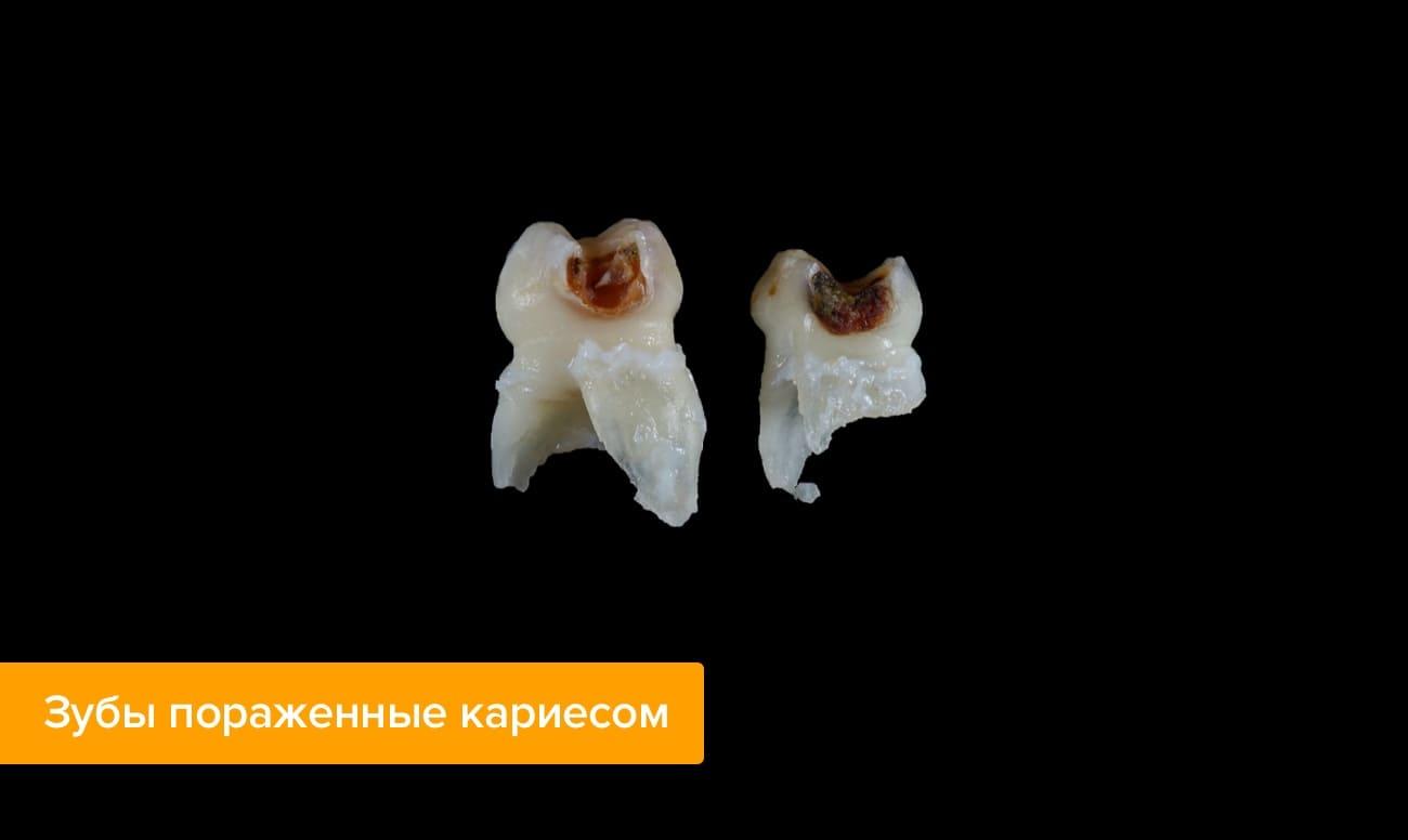 Пульпит молочных зубов