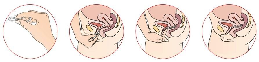 Можно ли ректальные свечи использовать вагинально