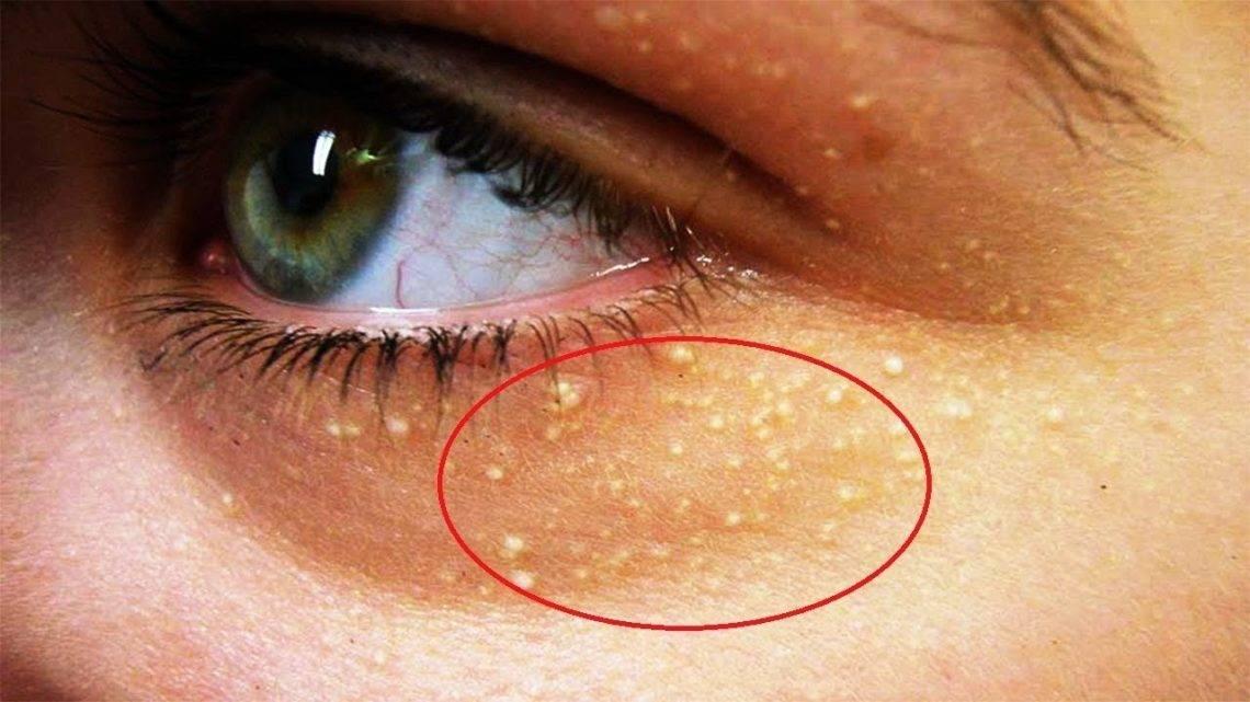 Лечение просянки на лице в домашних условиях