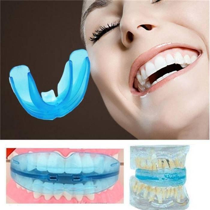 Идеальная улыбка — залог успеха. что лучше — брекеты или капы для исправления зубов?