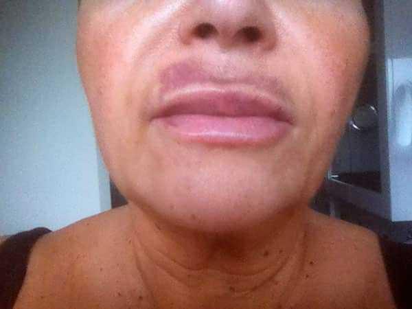 Как лечить сильную подкожную гематому на лице после удара и чем быстро убрать (избавиться) синяк от ушиба