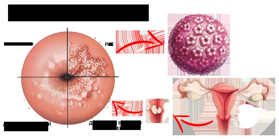 Доброкачественные заболевания шейки матки. виды, диагностика и лечение различных эрозий шейки матки