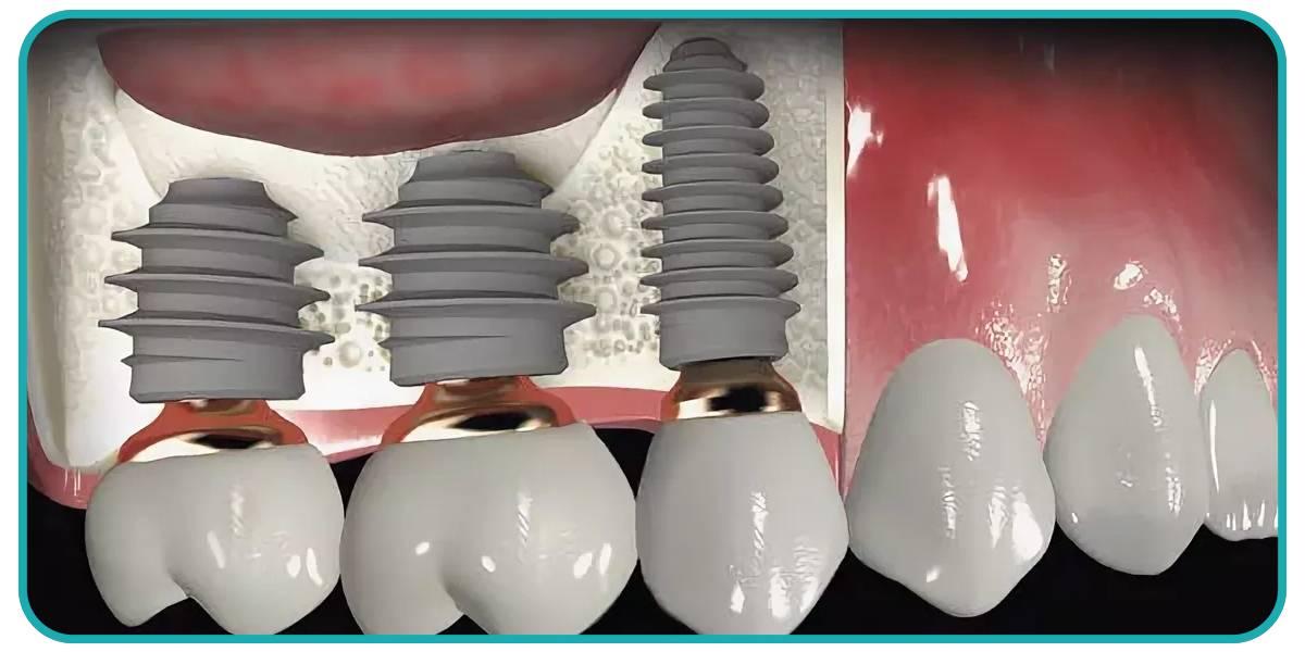 Начистоту о плюсах и минусах передовых методов имплантации зубов