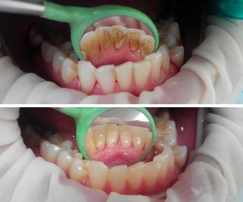 Белая диета после отбеливания зубов: что можно есть, преимущества и срок диеты
