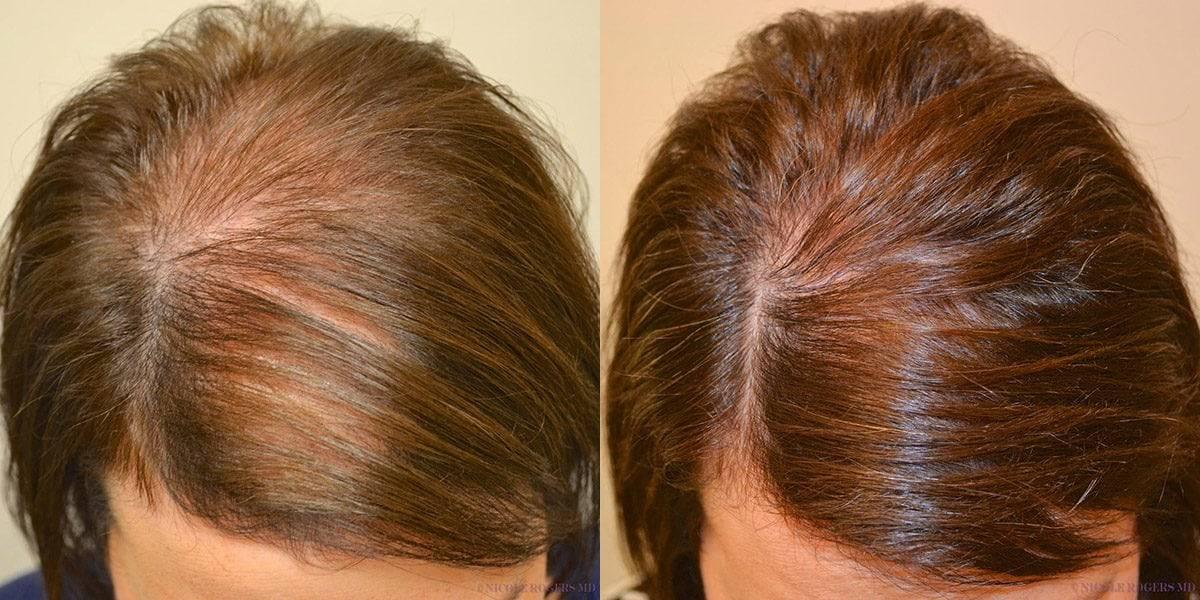 Выпадение волос при климаксе: почему это происходит и как лечить