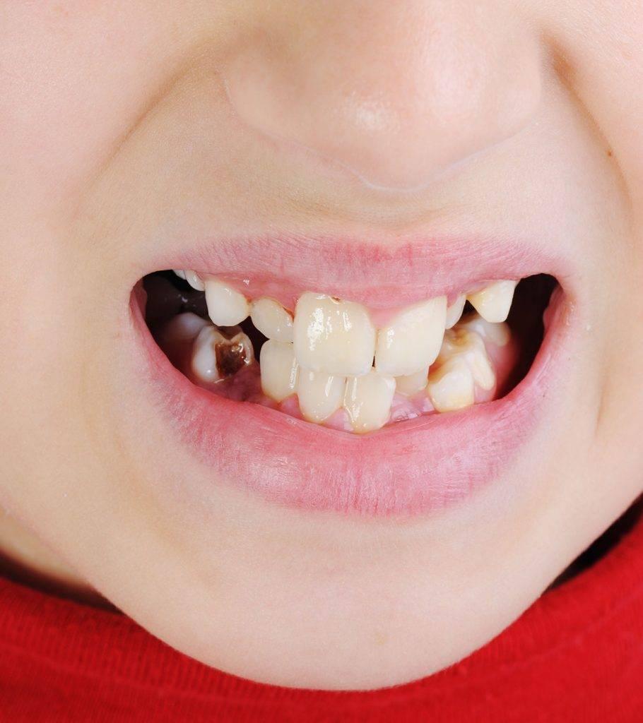 Гнилые зубы: последствия для организма
