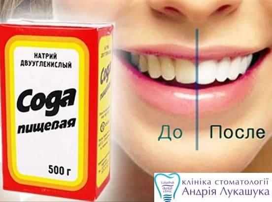 Можно ли почистить зубы пищевой содой?