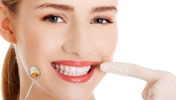 Народные рецепты от зубной боли
