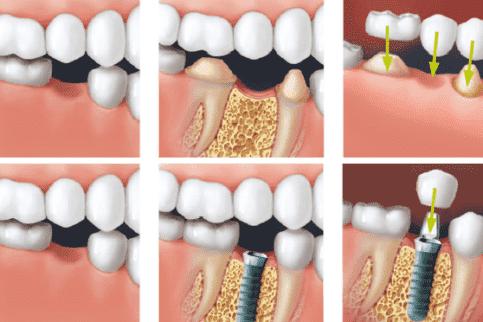 Искусственная десна при протезировании на имплантах