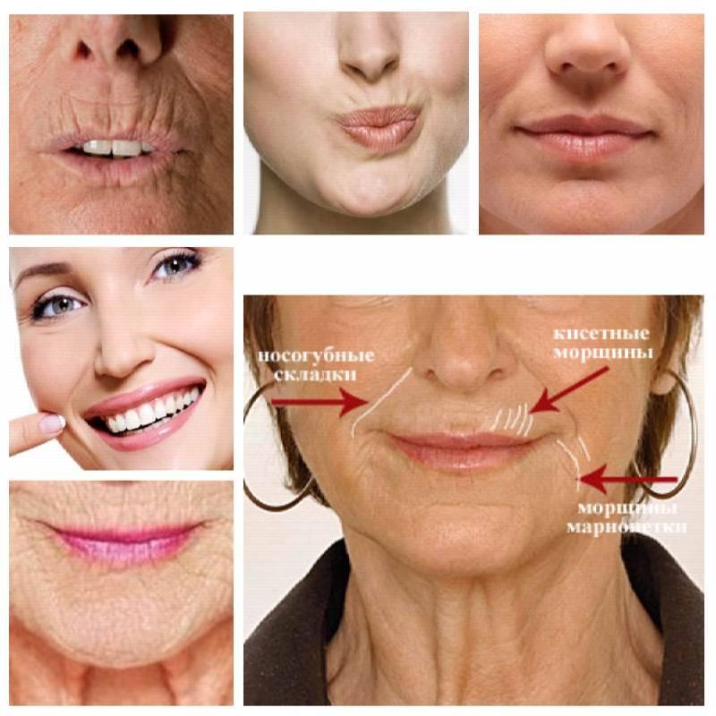 Как убрать морщины над верхней губой