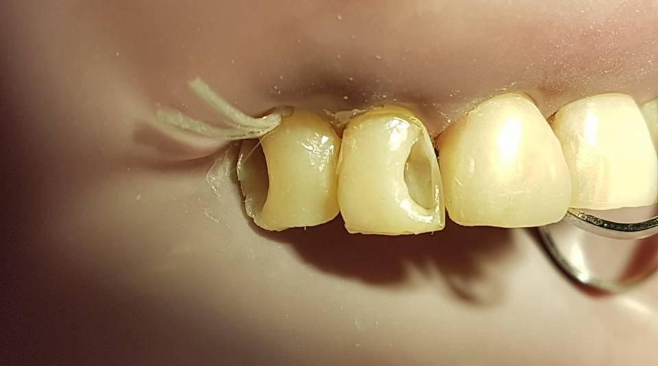 Что такое пришеечный кариес и сколько стоит его лечение в стоматологии?