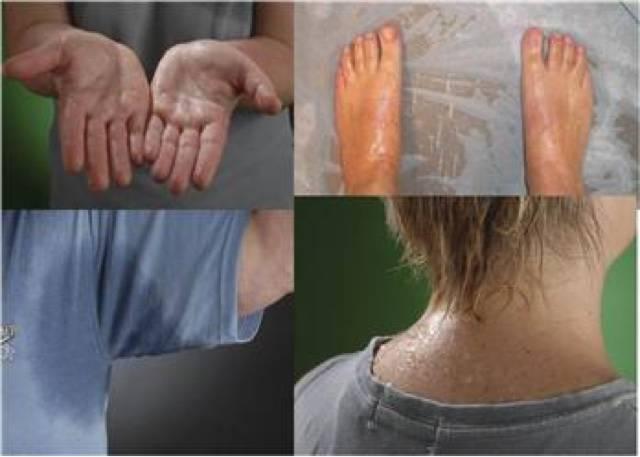 Лечение потливости в подмышечных зонах при помощи лазера: методика, показания и противопоказания