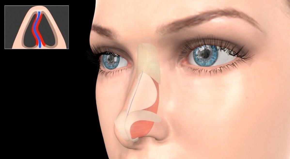Искривление носовой перегородки: лечение без операции, последствия, цена операции при искривлении перегородки носа