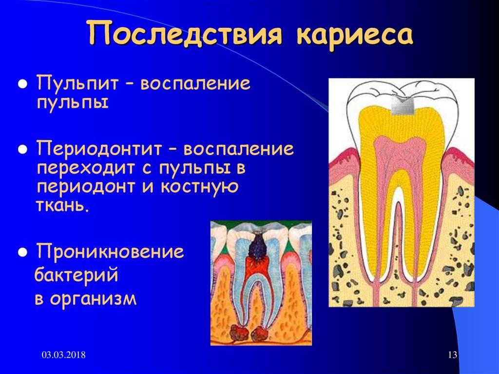 Запущенный кариес— сложный стоматологический недуг