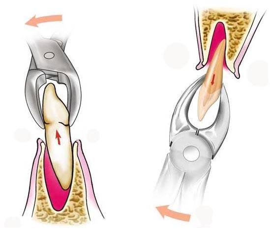 Удаление зуба мудрости: показания к операции, процедура удаления