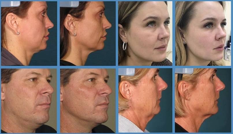 Круговая подтяжка лица. фото до и после, цена, как проходит операция хирургическим путем, нитями, и без операции. отзывы и цены