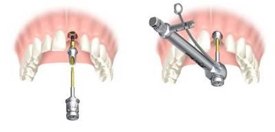 Осложнения после имплантации зубов. сколько дней держится отек и какой нужен уход?