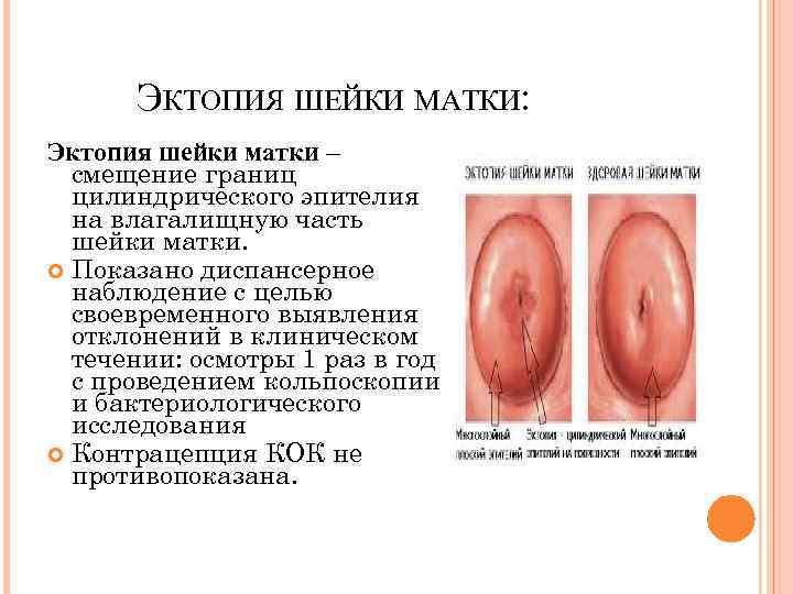 Пролиферация клеток цилиндрического эпителия шейки матки
