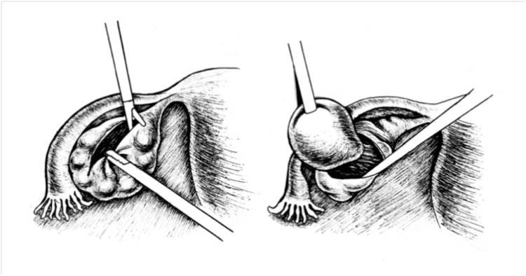 Варианты удаления кисты бартолиновой железы
