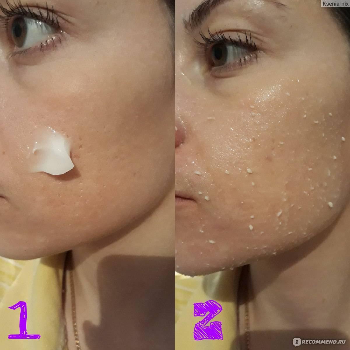 Обзор лучших 10 гелей-пилингов для лица