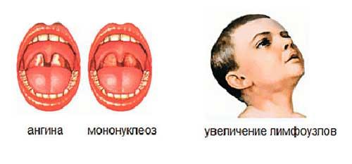 ангина при мононуклеозе