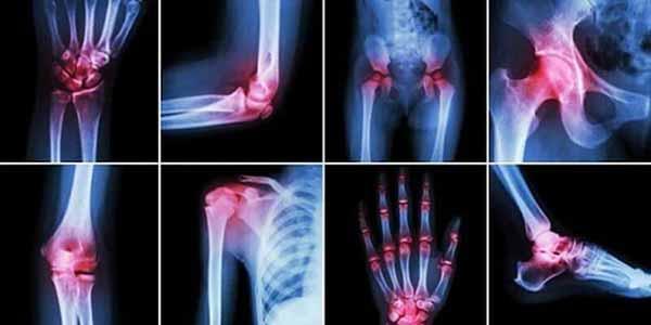 артриты разных суставов