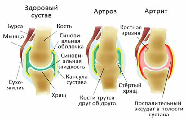 отличия артроза и артрита
