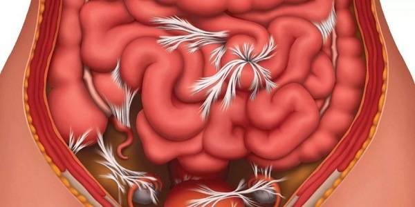 Спайки органов после кесарева сечения