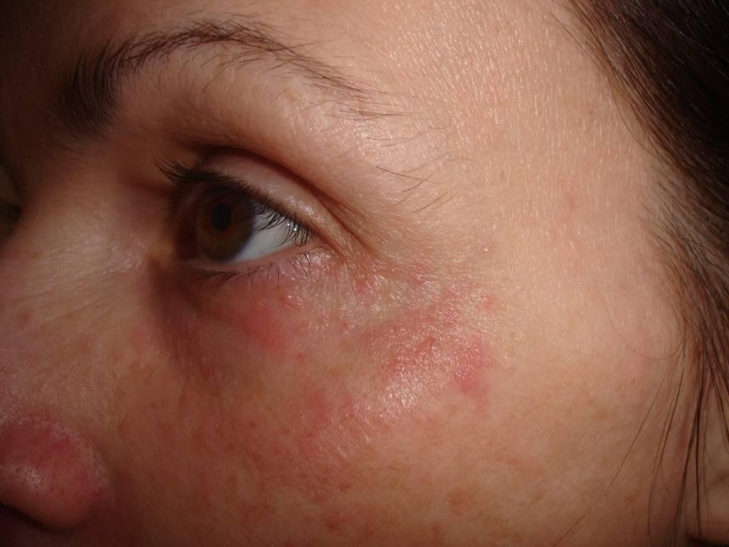 Чешется и зудит лицо, лоб, подбородок, щеки – обнаружение причины, лечение