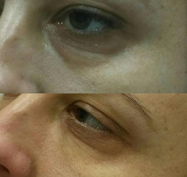 Коррекция носослезной борозды филлерами отеки