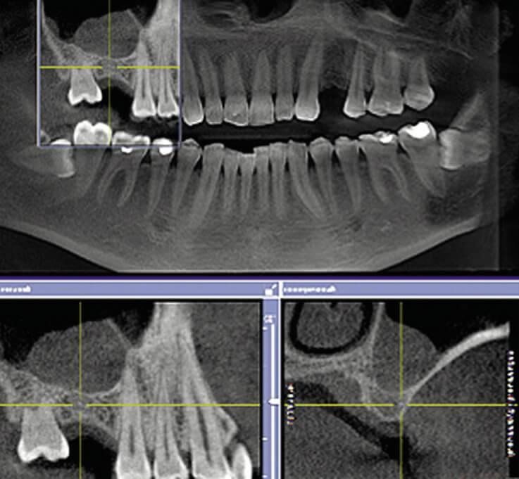 Рентген зуба - виды и расшифровка. как часто можно делать рентген и что он показывает медпортал фармамир -новости, статьи, обзоры медцентры, врачи, отзывы, рейтинги