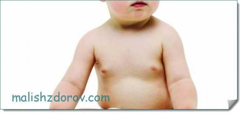 Уплотнение в груди у ребенка: причины шишки на груди у мальчика, девочки или подростка