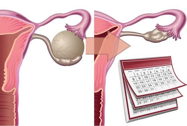 Боли в яичниках при месячных. почему болят яичники при беременности: причины. что делать, если болят яичники при беременности