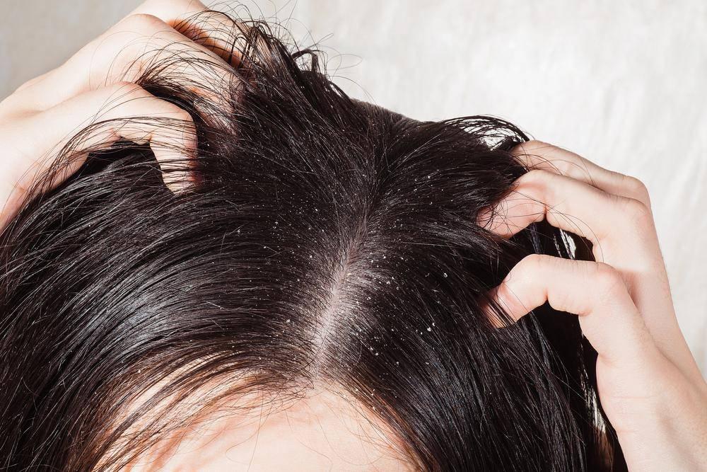 Эффективные методы борьбы с раздражением кожи головы и причины появления этой проблемы