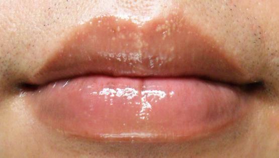 Что делать, если на губах появились белые точки