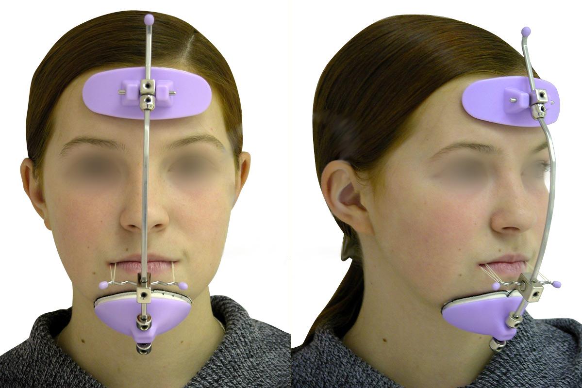 Использование артикулятора и лицевой дуги в современной стоматологии