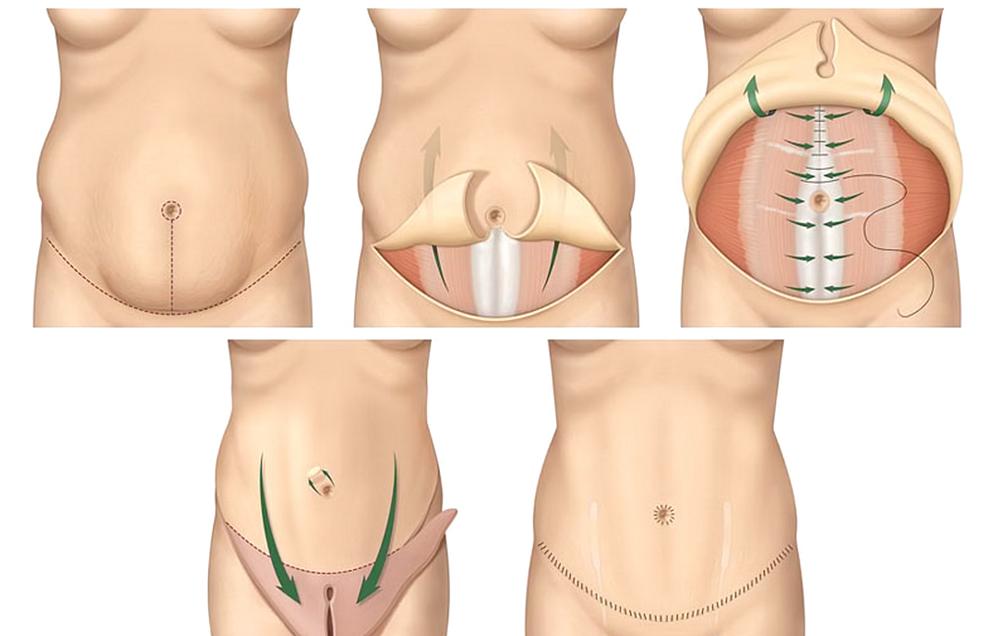 Меры профилактики растяжек при беременности