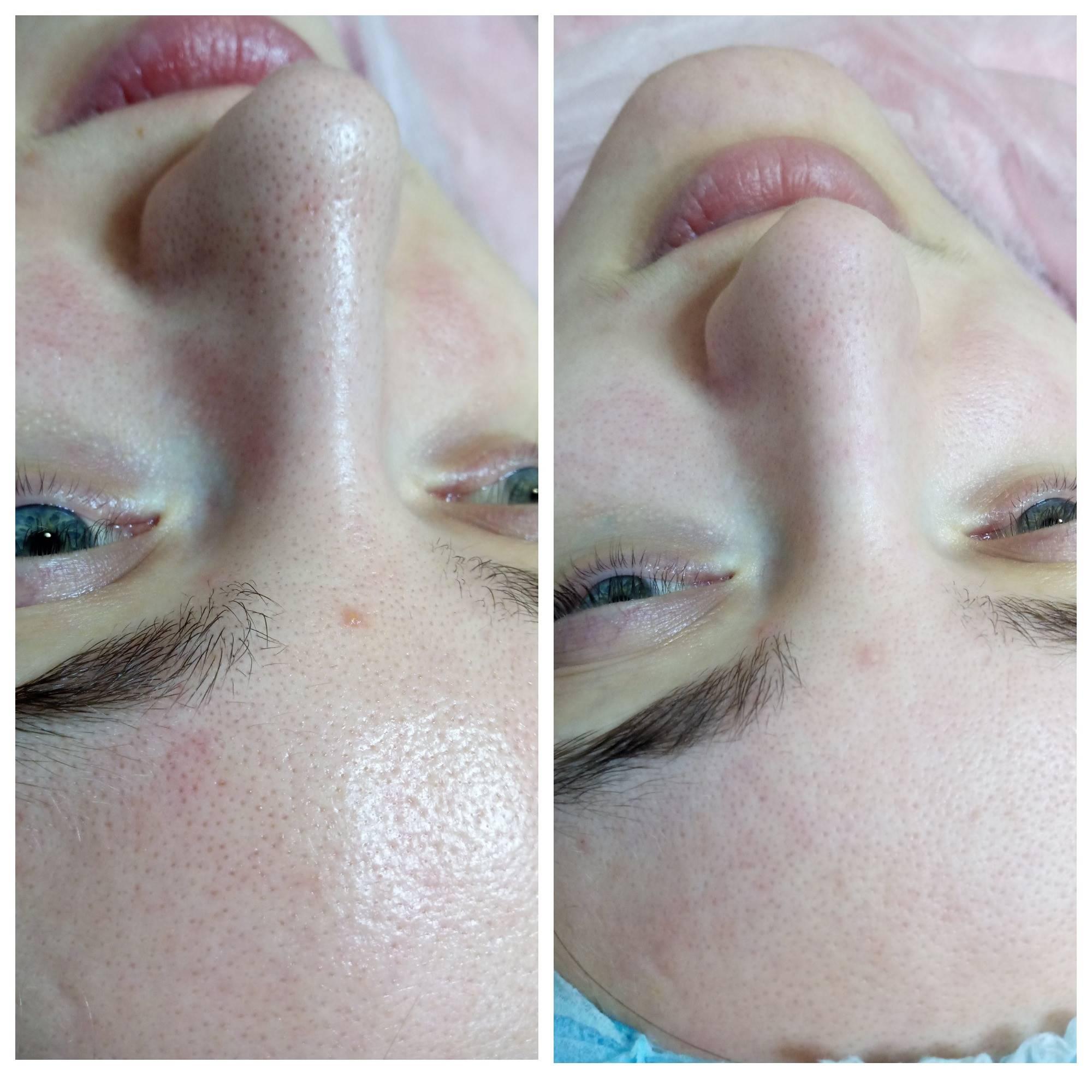 Профессиональная чистка лица у косметолога — особенности проведения