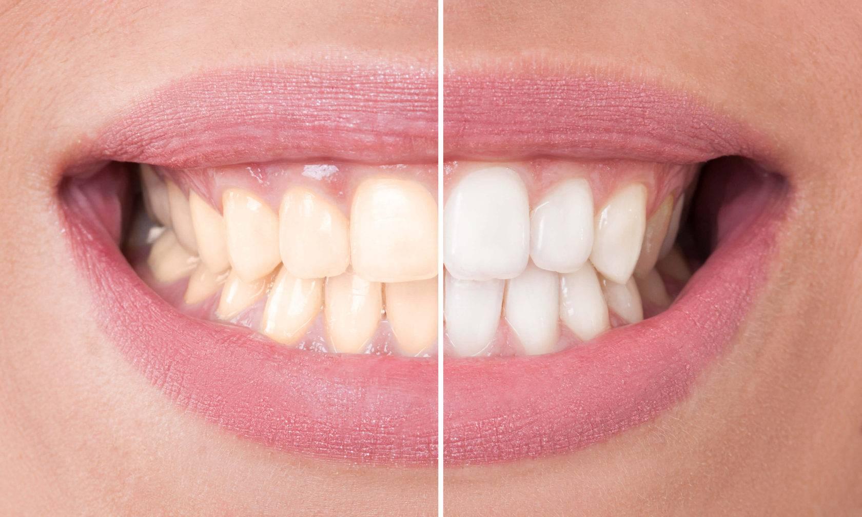 Можно ли отбелить зубы без вреда для здоровья?