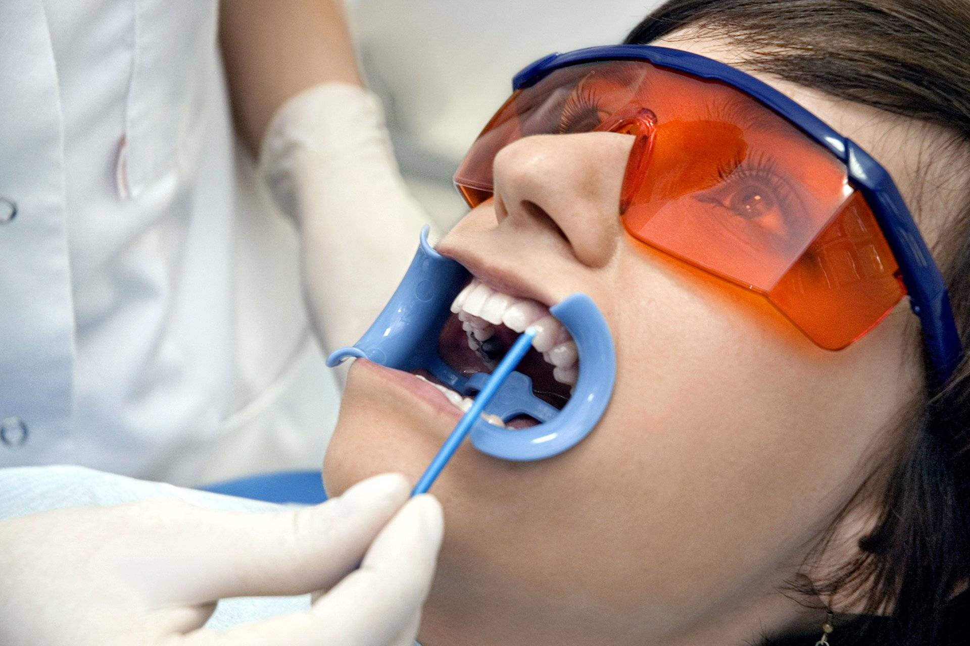 Реминерализация зубов вдомашних условиях
