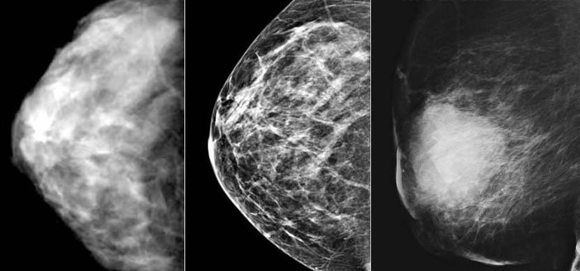 Роль эластографии в диагностике болезней молочных желез