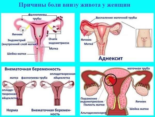Почему возникают боли в области влагалища при менструации