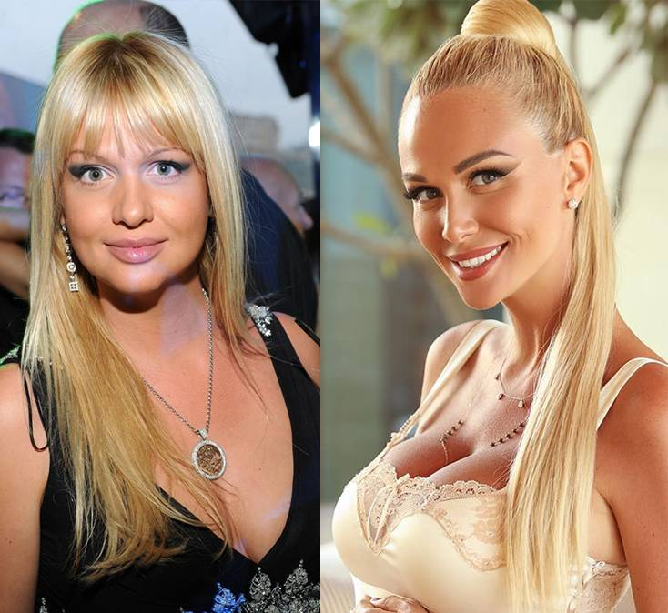 Виктория лопырева до похудения фото – до и после пластики +фото- биография, личная жизнь, пластические операции, карьера +фото