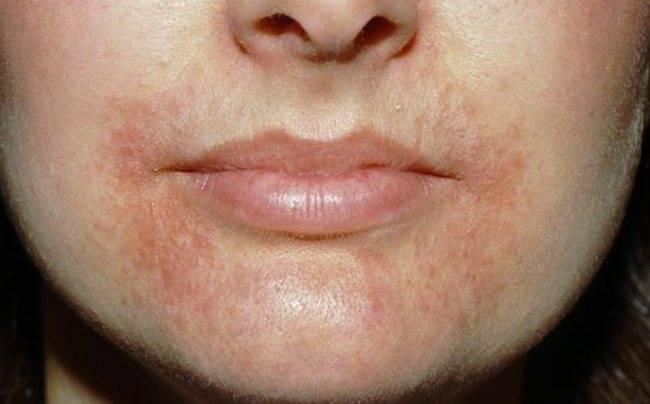 Проявление аллергии на языке и ее лечение