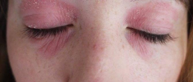 Чешется лицо, лоб, щеки, подбородок: причины зуда, лечение