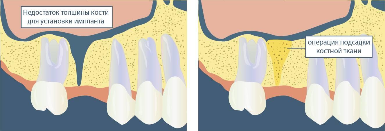 Что делать, если после удаления зуба торчит кость