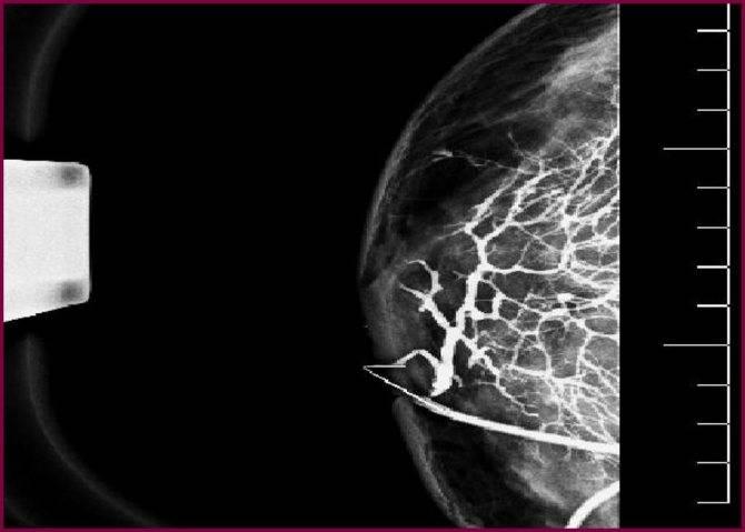 Все о методике исследования протоков молочной железы через дуктографию