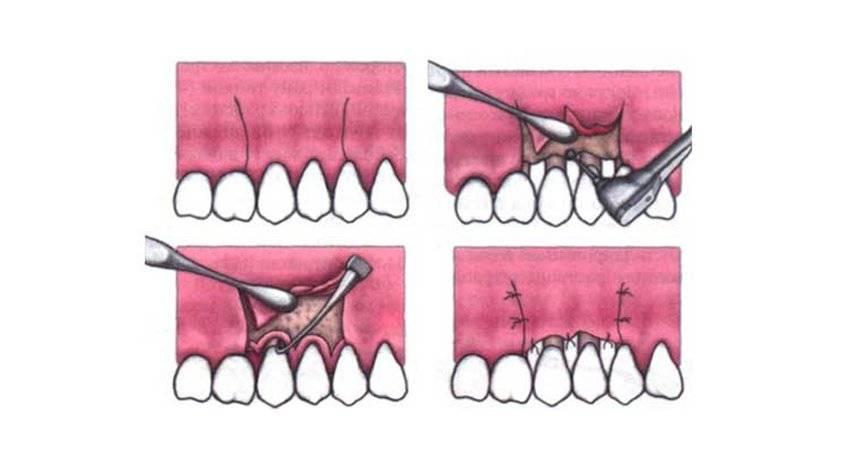 Кюретаж пародонтального кармана – сколько стоит открытый и закрытый кюретаж – стоматологический портал